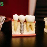Essential Tips to Manage Dental Emergency