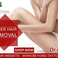 Pain free Laser Hair Removal Treatment With Dr. Numb - Beyond Tattoos