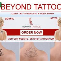 Laser Tattoo Removal Treatment With Dr. Numb