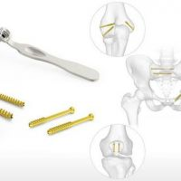 Orthopedic Implants and Trauma Suppliers UK
