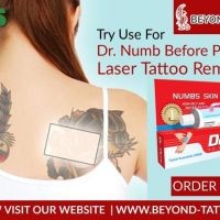 Dr. Numb For Painfree Laser Tattoo Removal